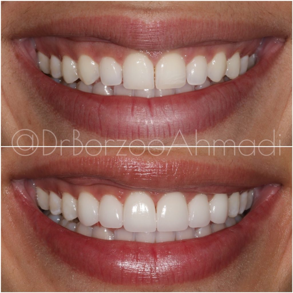 Cosmetic Dentist in Beverly Hills, CA