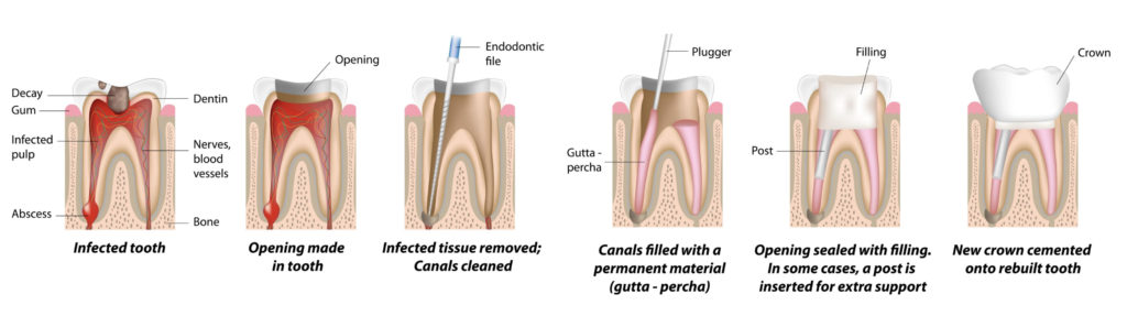 Root Canal Beverly Hills