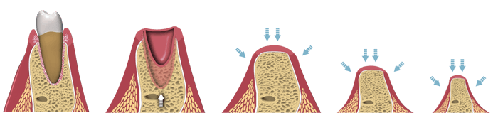 Root Canal Dentist Beverly Hills