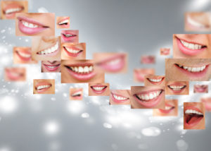 Invisalign in West Hollywood, CA 90069