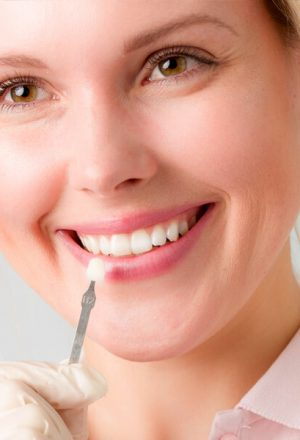 Porcelain Veneers: What You Need To Know