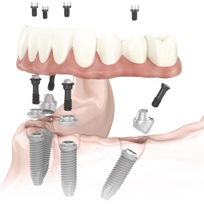Dental Implants West Hollywood